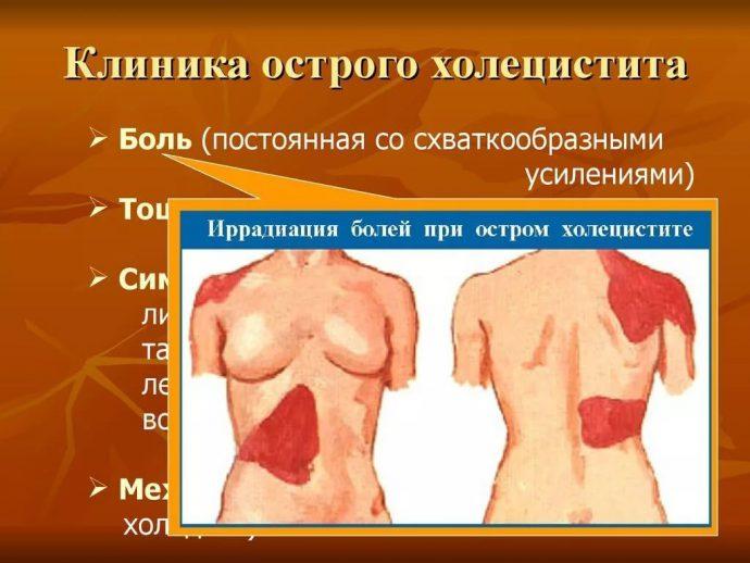 боль при остром холецистите