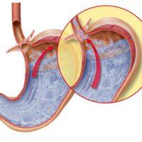 Недостаточность кардии желудка: причины, симптомы и лечение