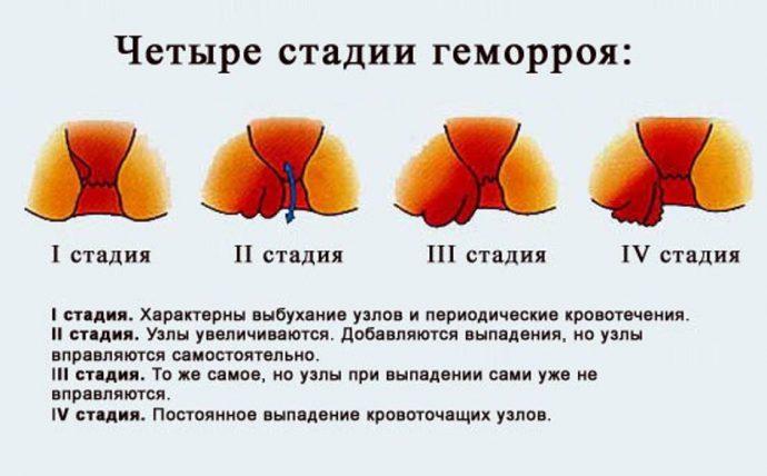 Трещины в анальном отверстии