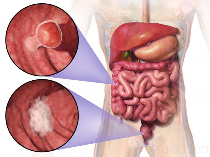первые симптомы рака прямой кишки