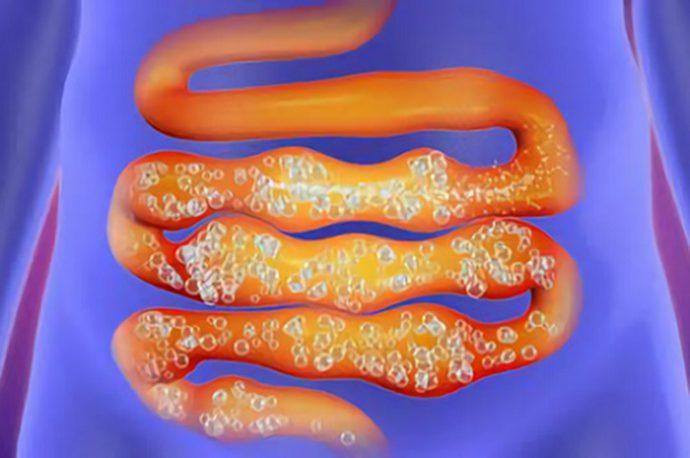 процесс метеоризма в кишечнике