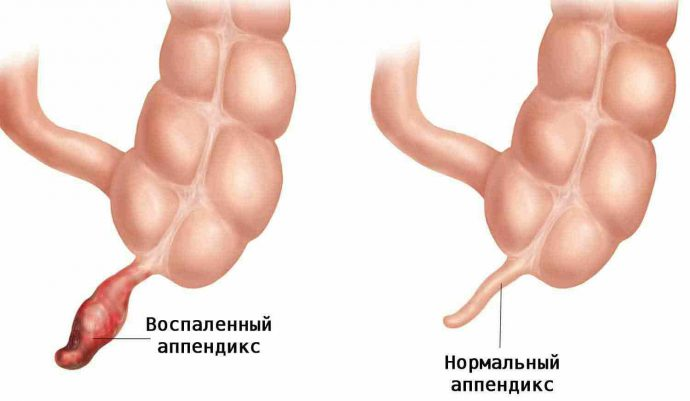 здоровый и воспаленный аппендикс