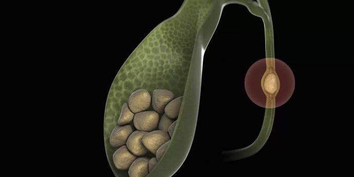 болезнь желчного пузыря