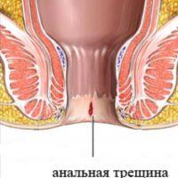 Что провоцирует воспаление ануса и как избавиться от проблемы
