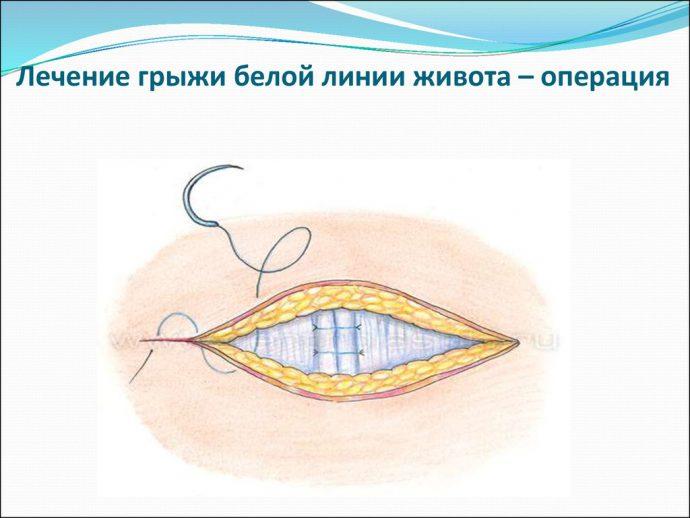 белая линия живота операция