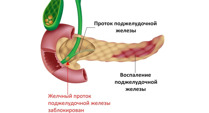 Поджелудочная железа препараты
