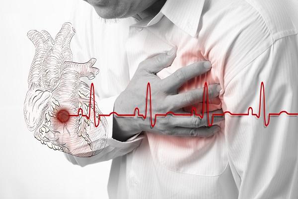 приступ инфаркта