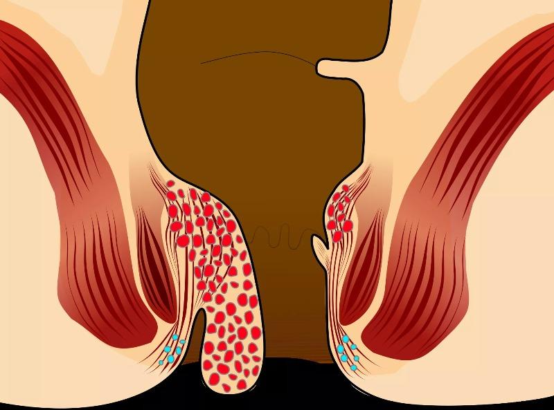 Свищ прямой кишки симптомы, причины и эффективные методы лечения