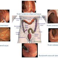 Фиброколоноскопия и колоноскопия: суть методов и отличия