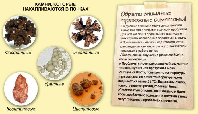 виды камней в мочеточнике