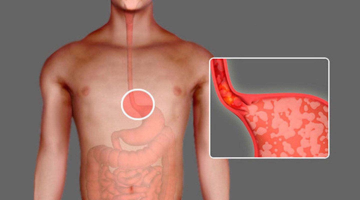 Изжога в горле: причины, симптомы и лечение