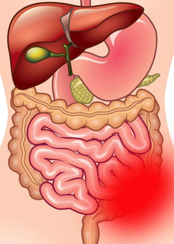 Заворот кишок симптомы у беременных