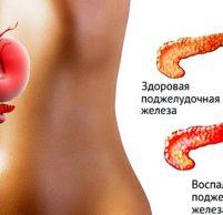 Увеличена поджелудочная железа: причины, симптомы и лечение
