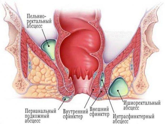 хронический парапроктит