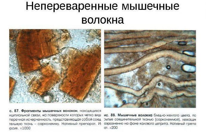 мышечные волокона в кале