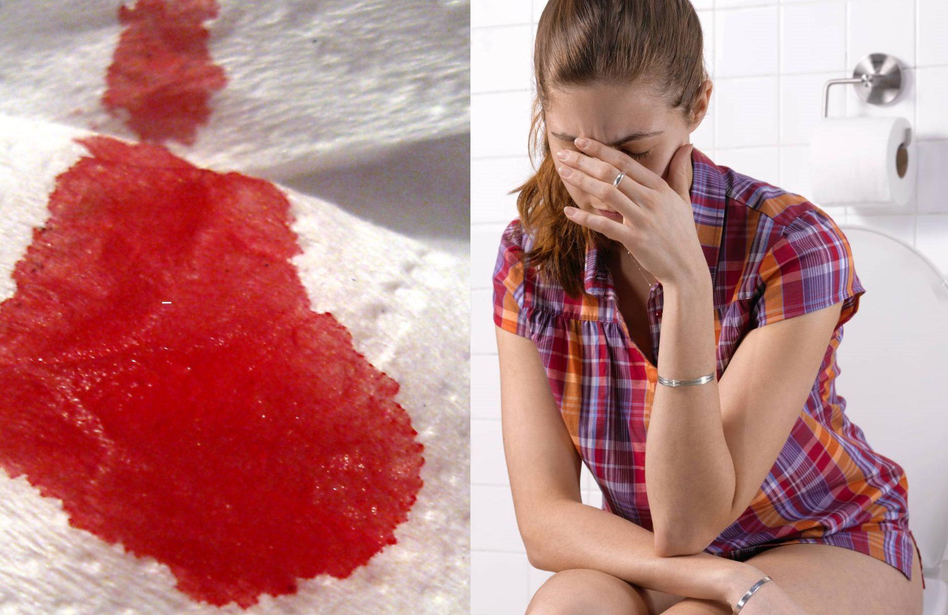 Кровь из анального как лечить