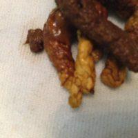 Причины появления непереваренных кусочков пищи в кале взрослого человека