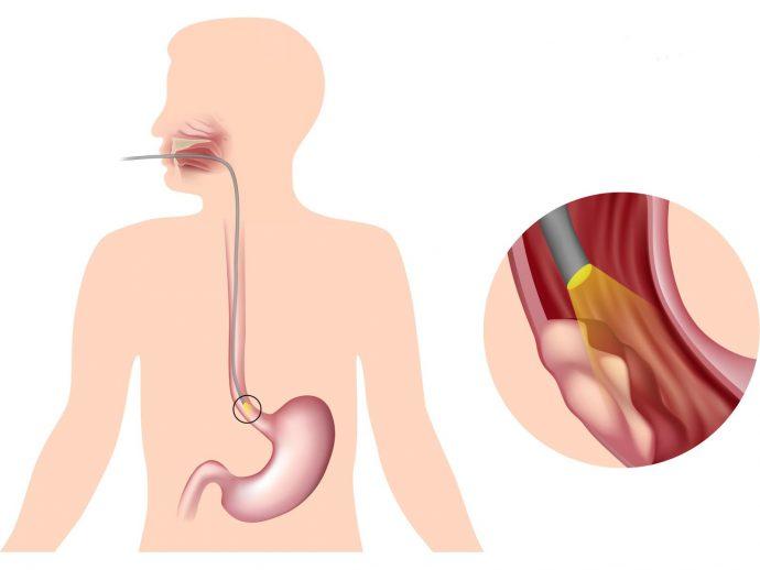 аппаратное исследование пищевода
