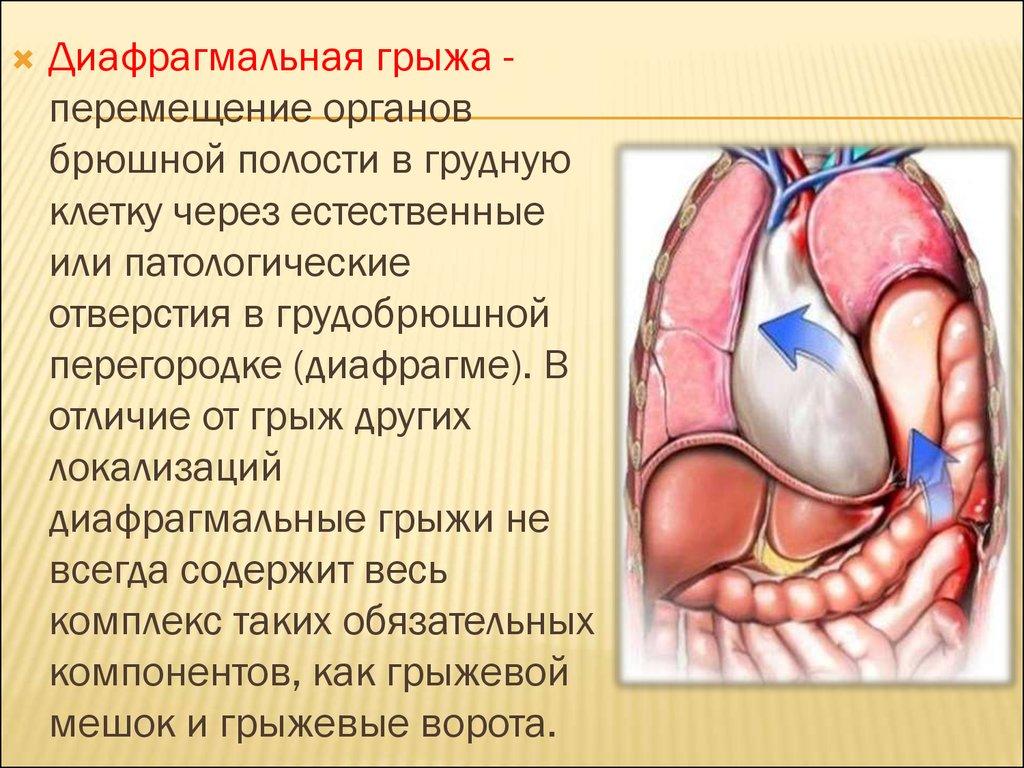 Диафрагмальная грыжа плода у беременных 74