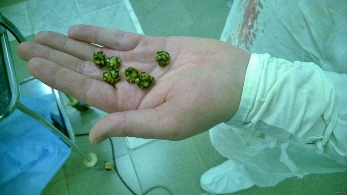 камни в желчном пузыре