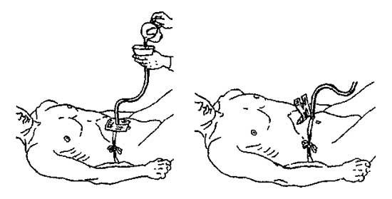 кормление пациента