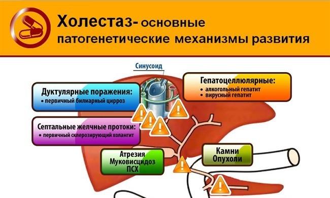 основные механизмы развития холестаза