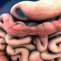Перистальтика кишечника