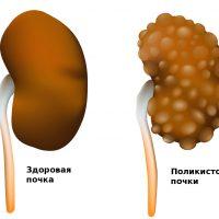Симптомы и лечение поликистоза почек