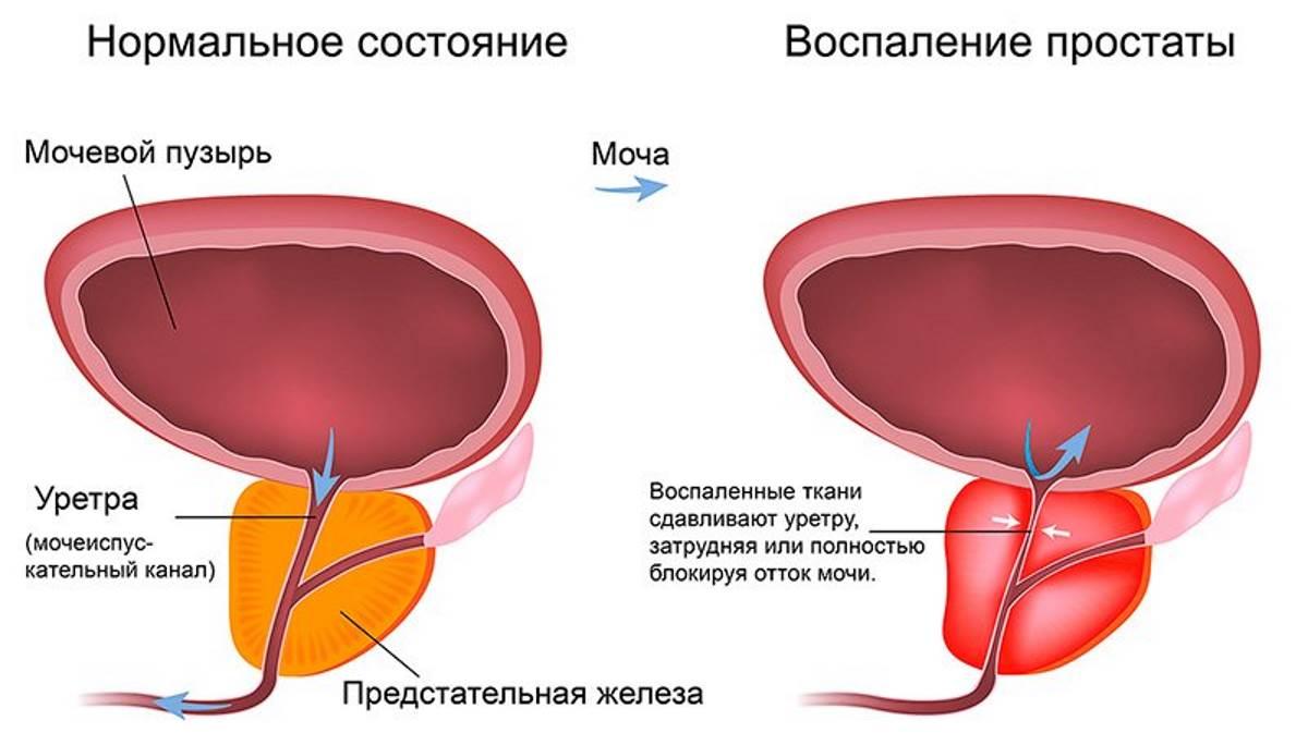 Чем лечить воспаление предстательной железы у мужчин