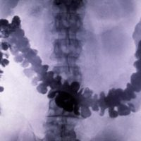 Подготовка к рентгену кишечника с барием