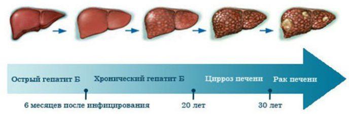 течение цирроза печени