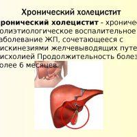 Симптомы и причины холецистита