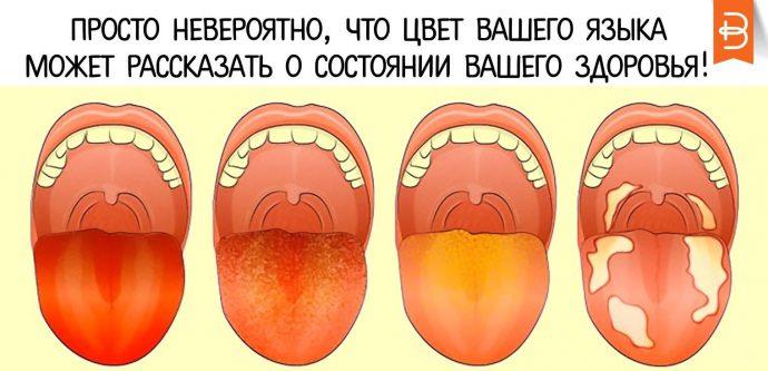 цвет языка