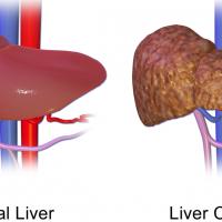 Сколько живут с циррозом печени: прогнозы врачей
