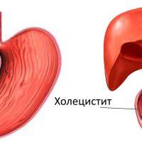 Хронический дуоденит: симптомы и лечение