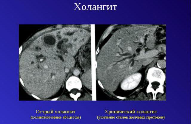 Холангит острый и хронический