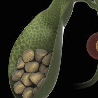 Причины появления камней в желчном пузыре