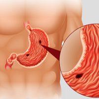 Причины и симптомы язвенной болезни желудка