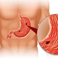 Симптомы, причины и лечение язвы желудка у взрослых
