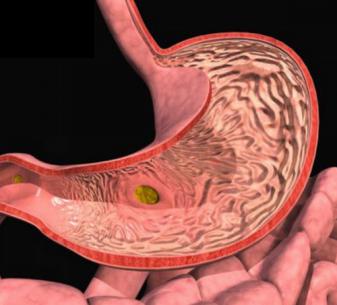 катаральный бульбит