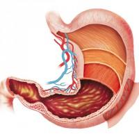 Патологии привратника желудка и их лечение
