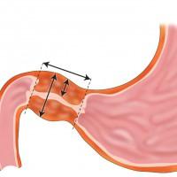 Стеноз привратника желудка, симптоматика и методы терапии