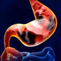 Опухоль желудка: симптомы, свидетельствующие о проблеме