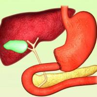 Резекция желудка по Бильрот 1 и 2 – основные понятия