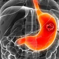 Карцинома желудка – что это такое?