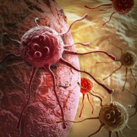 Низкодифференцированная и высокодифференцированная аденокарцинома желудка