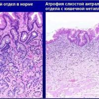 Атрофия слизистой желудка: как лечить и восстанавливать