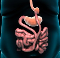 Шунтирование желудка – отзывы и что это такое?