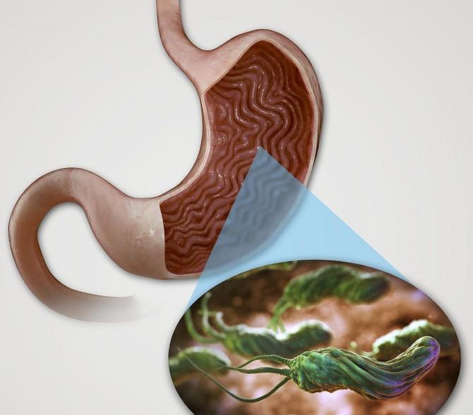 хеликобактер в желудке