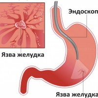 Перфоративная язва желудка и двенадцатиперстной кишки
